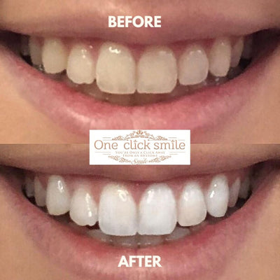 One Click Smile Teeth Whitening Kit before and after results.