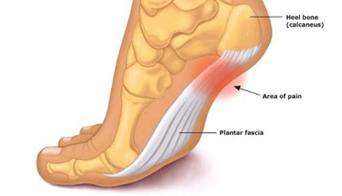 Plantar Fasciitis & Heal Pain - What's Causing it and 5 Steps to a Pain Free Life.