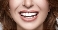 Load image into Gallery viewer, SmileCrystal Snap-On Smiles
