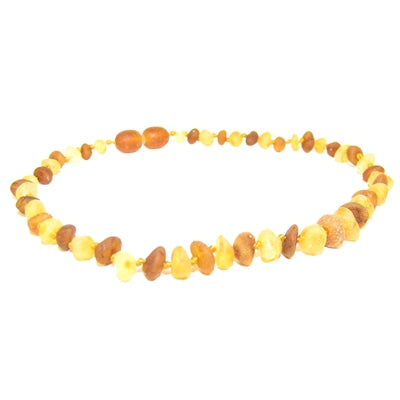 The Amber Monkey Baroque Baltic Amber 12-13 inch Necklace - Raw Lemon/Raw Cognac