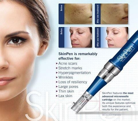 Microneedling - Package of 3