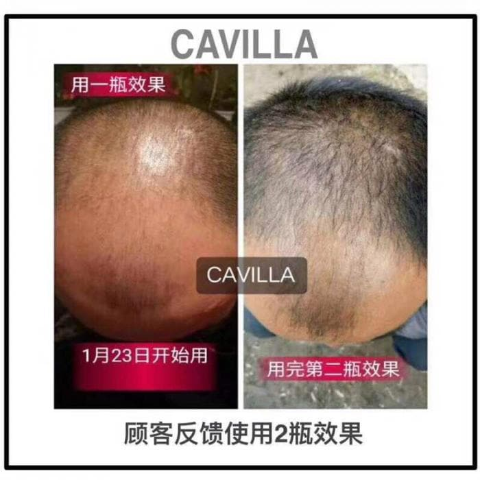 Cavilla Malaysia 3 Easy Way To Thicken My Hair Article 10