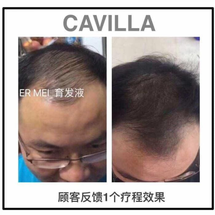 Cavilla Malaysia 3 Easy Way To Thicken My Hair Article 11