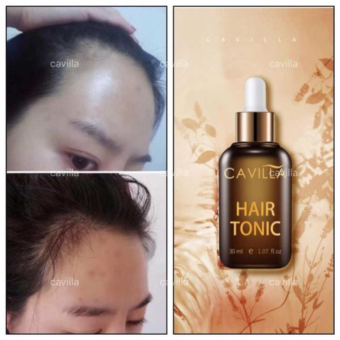 Cavilla Malaysia 3 Easy Way To Thicken My Hair Article 12