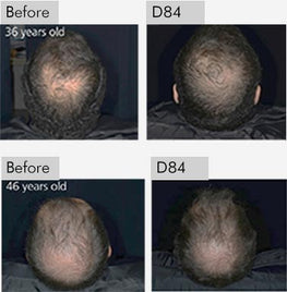 reducing baldness for 36 and 46 years old people and increasing hair growth
