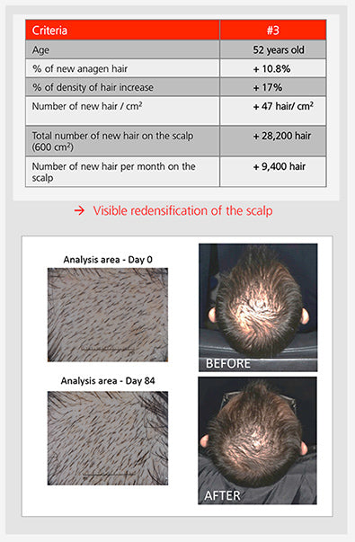 visible results of hair growth using redensyl