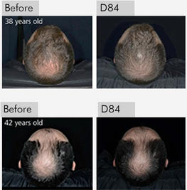 clinically proven hair growth treatment for 38 and 42 years