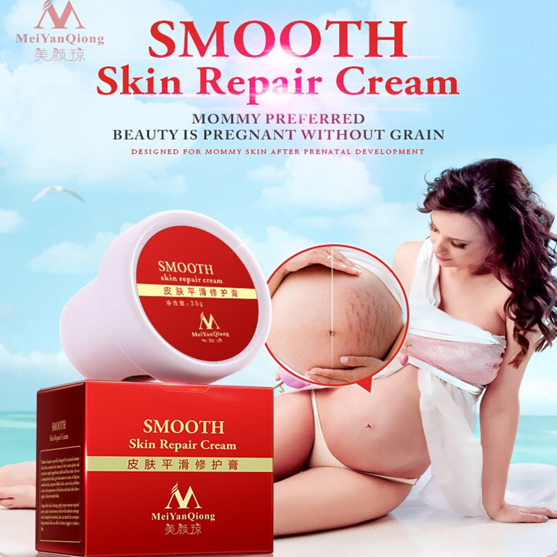 High-Quality Smooth Skin Cream For Stretch Marks Scar Removal & To Maternity Skin Repair Body Cream