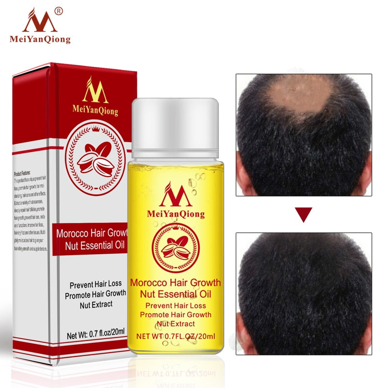 Morocco Nut Essential Oil Hair Faster Growth Products & Shampoo Stop Hair Loss Treatment