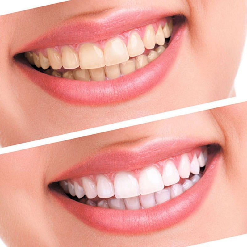 Professional Teeth Whitening 44% Peroxide Dental Bleaching System