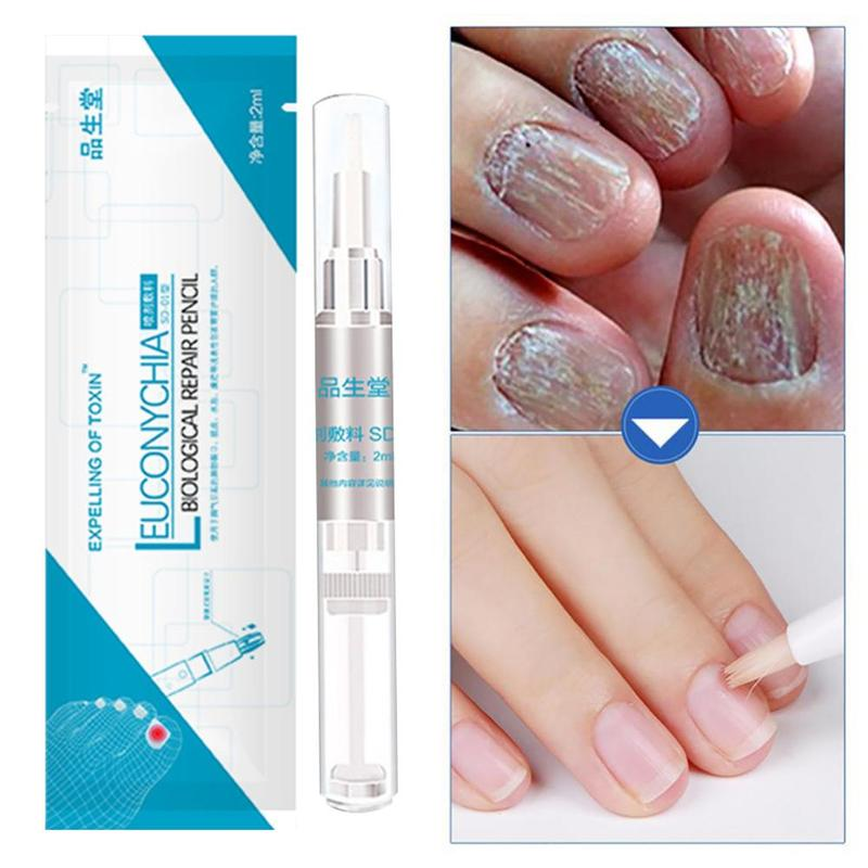 Anti Fungal Biological Rehydration Solution Pen Nail Treatment