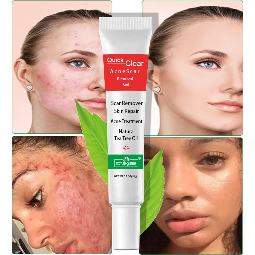 Natural Tea Tree Oil Acne Treatment & Face Scar Remover