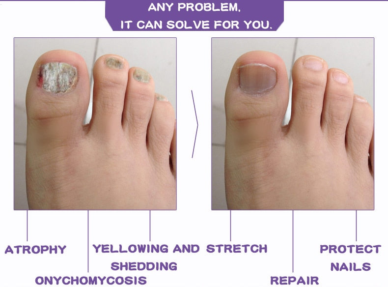 Onychomycosis Paronychia Anti-Fungal Nail Infection Treatment Serum