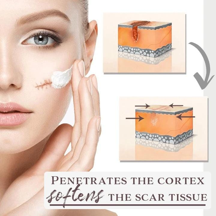 Youthful Scar Removal Treatment FX080401