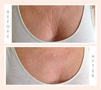 Chest & Décolletage Wrinkle Smoothing Kit (1 Silicone Chest Pad)