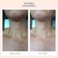 Neck Wrinkle Smoothing Kit (1 Silicone Neck Pad)