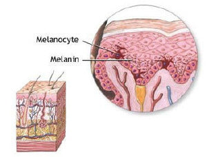 Melanin skin tanning after Melanotan injection