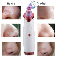 Shop2Go Rose Gold Electric Acne Remover Blackhead Extractor