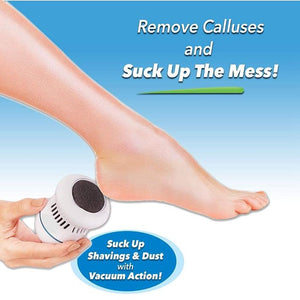Electric Callus Remover - Built-In Vacuum Rechargeable Motorized Feet Foot Pedicure Tool Exfoliation Dead Skin - 5econds.co