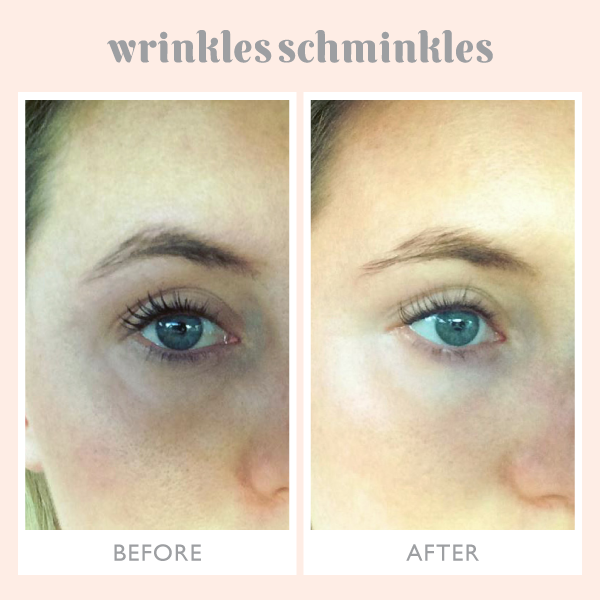 Eye Wrinkles Smoothing Kit