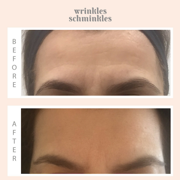 Forehead Wrinkles Smoothing Kit