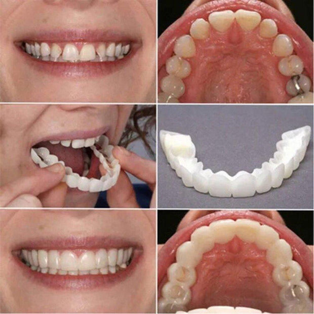 (2-Pack) IHRtrade Magic Teeth Brace - kit includes resin and plastic mold - Upper & Lower Teeth