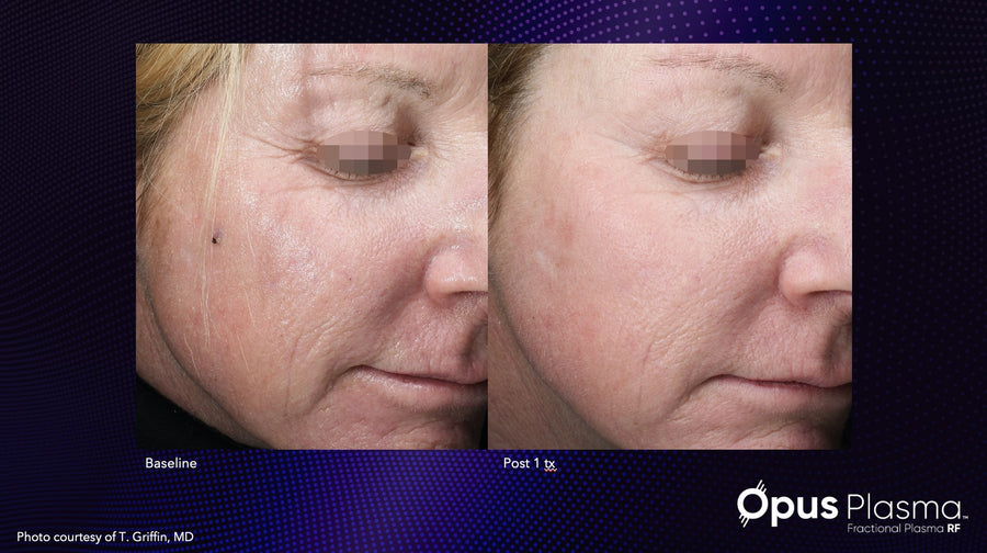 Opus Plasma Laser - Full Face - 3 Treatments