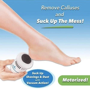 Vvdeoo Vacuum Callus Remover And Collector 4
