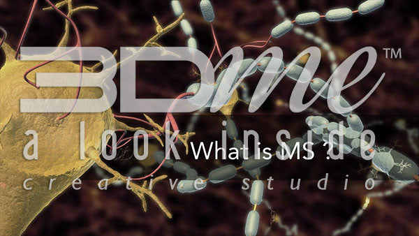 What is MS?