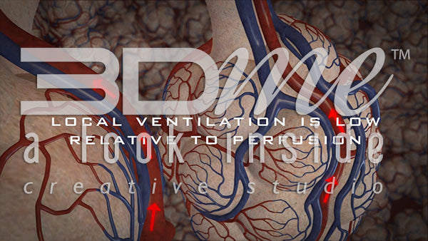 How does the blood leave the alveoli when local ventilation is low relative to perfusion?