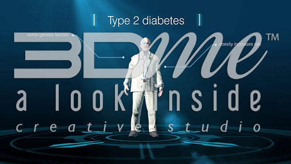 Type II Diabetes - Causes