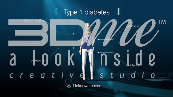 Type I Diabetes - Causes