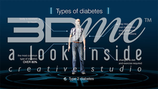 Graphic - Diabetes Types 3
