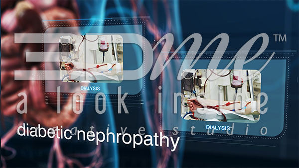 Graphics diabetic nephropathy