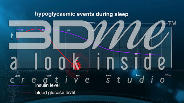 How is sleep disrupted by hypoglycaemia?