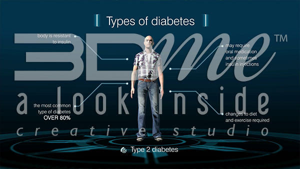 What are the causes of different kinds of diabetes?