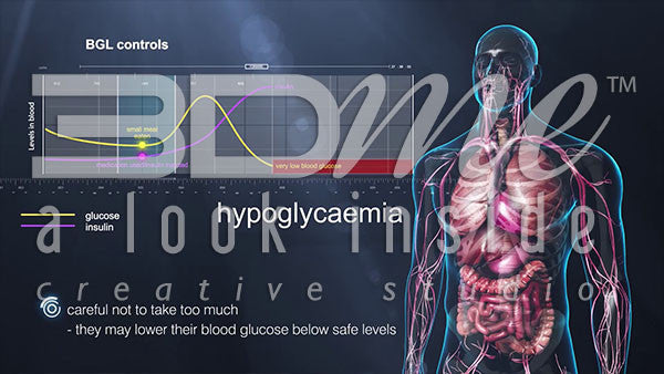 What is Hypoglycaemia?