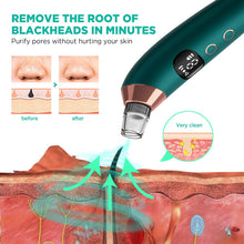 Load image into Gallery viewer, Cahot Blackhead Remover Pore Vacuum