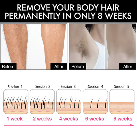 point store laser hair removal