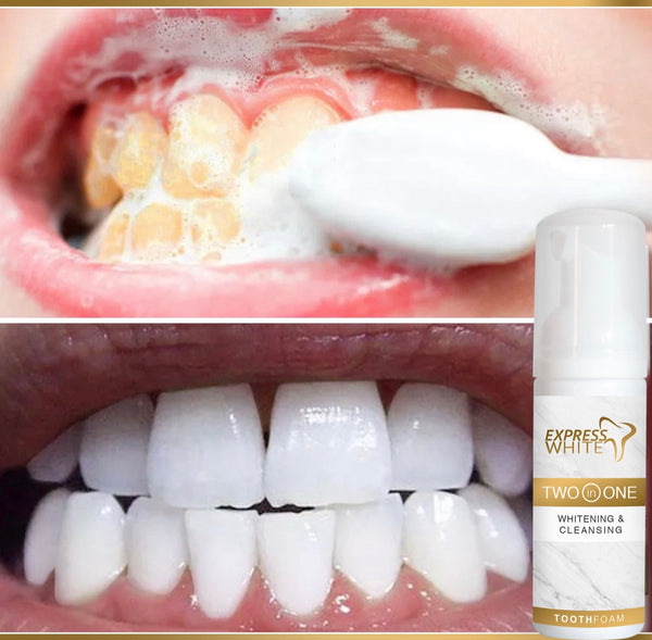 Teeth Whitening Foam - Express White