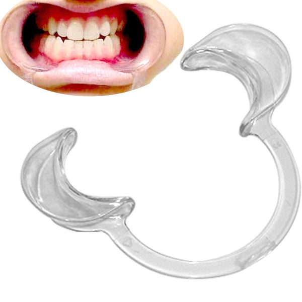Mouth Retractor - Express Teeth Whitening