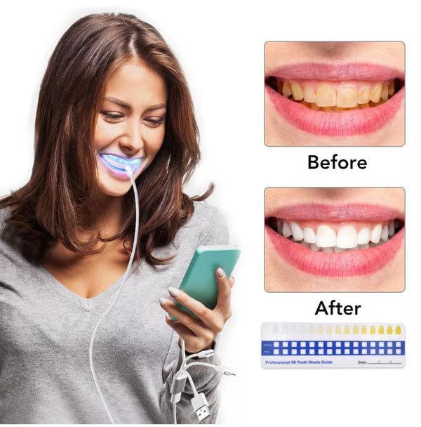 LUXURY Teeth Whitening Kit - Express White