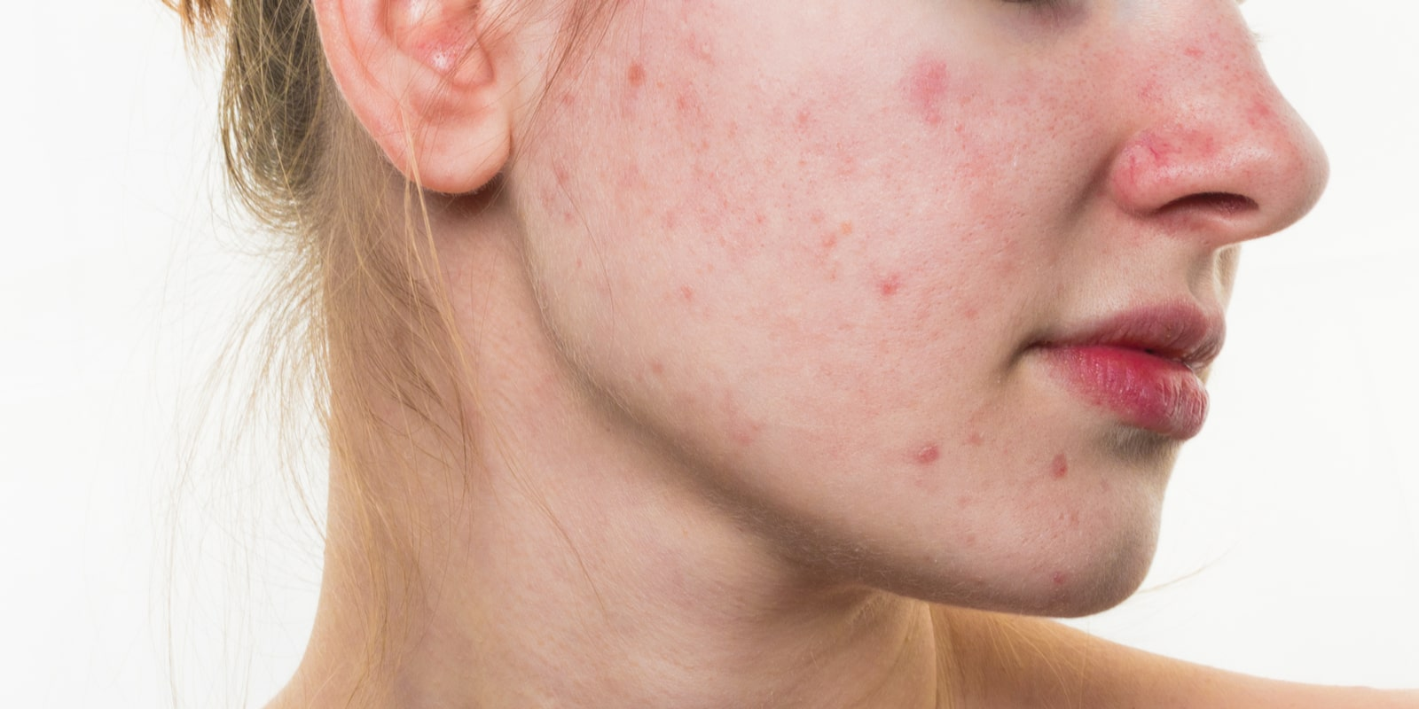 Acne on womans skin