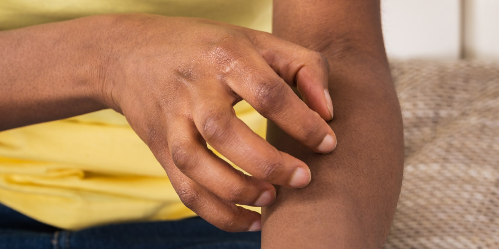 An African Woman Suffering From Itching