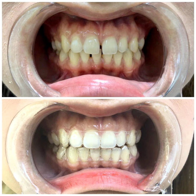NewSmile invisible braces orthodontic before after photo