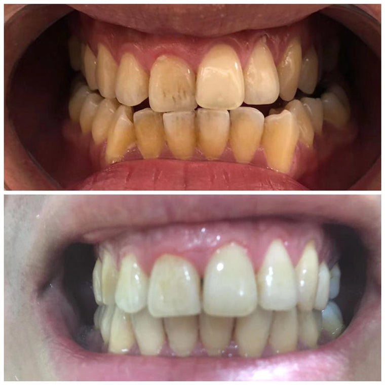 Before After NewSmile Clear Aligner Results
