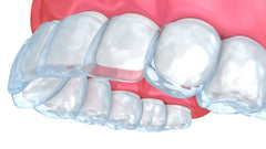 Caring for your invisible aligners | NewSmile Life Canada