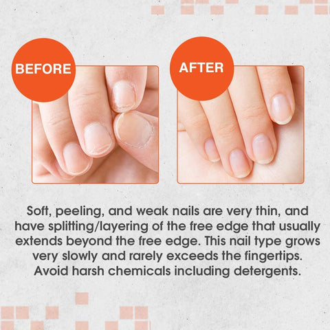Nail Tek Before & After