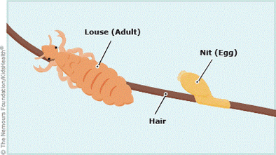 The FAQs of Lice