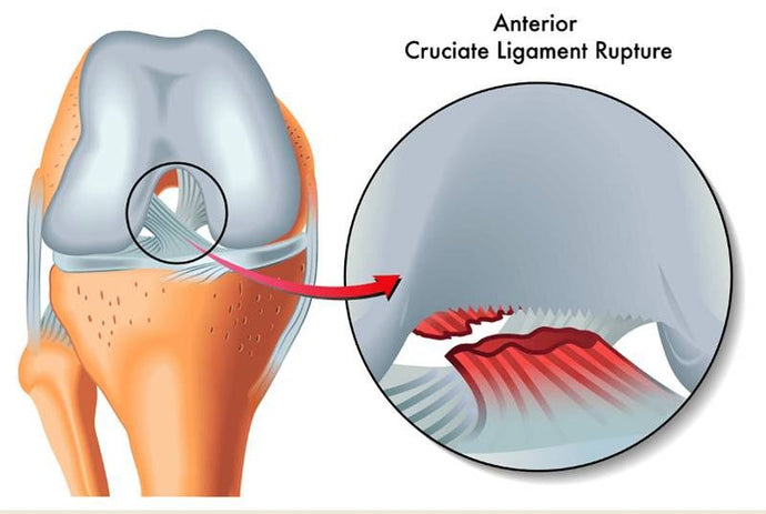 3 Exercises To Strengthen Your ACL